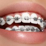 higiene oral en pacientes con ortodoncia