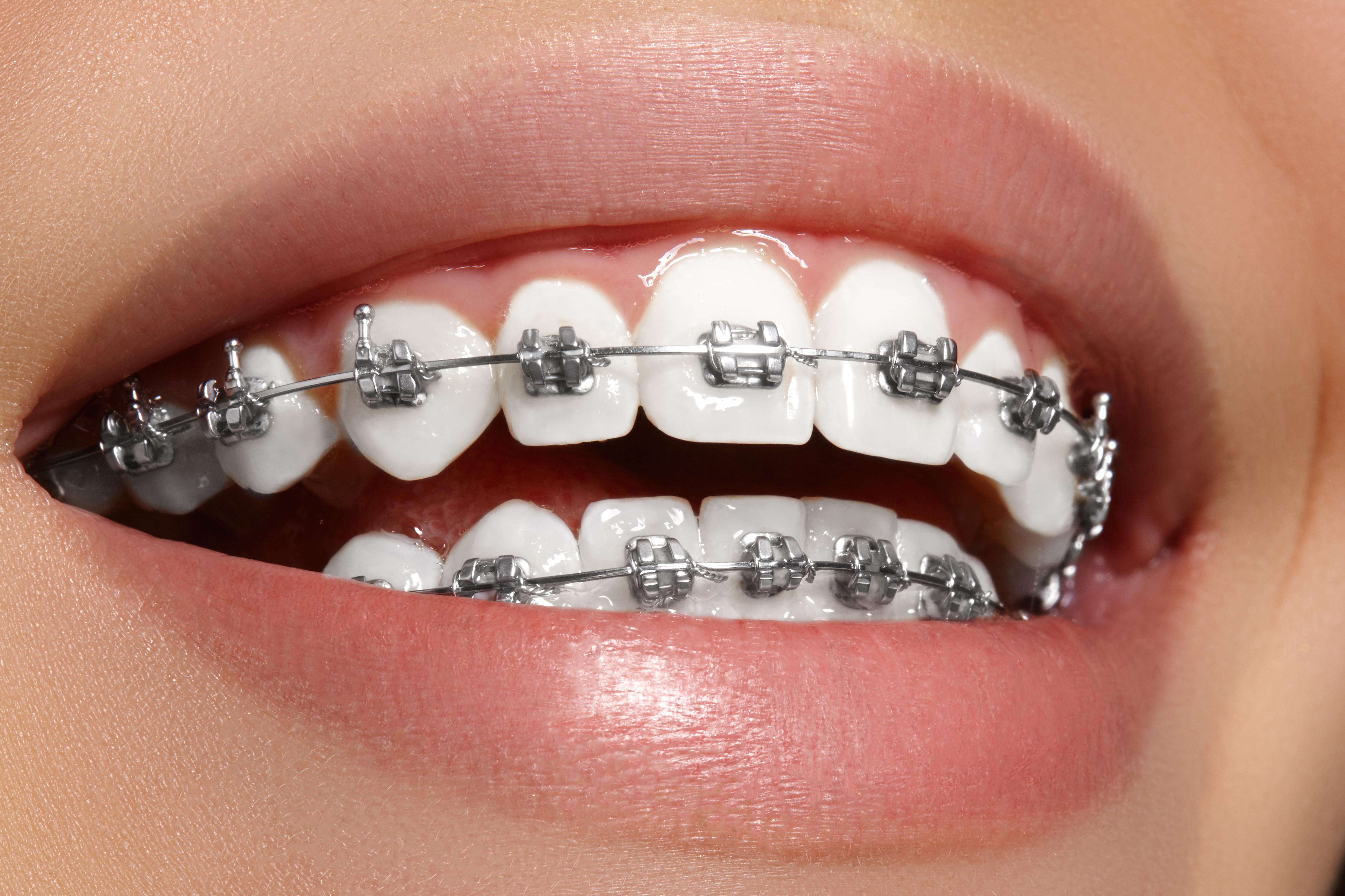Hábitos de higiene oral en pacientes con ortodoncia