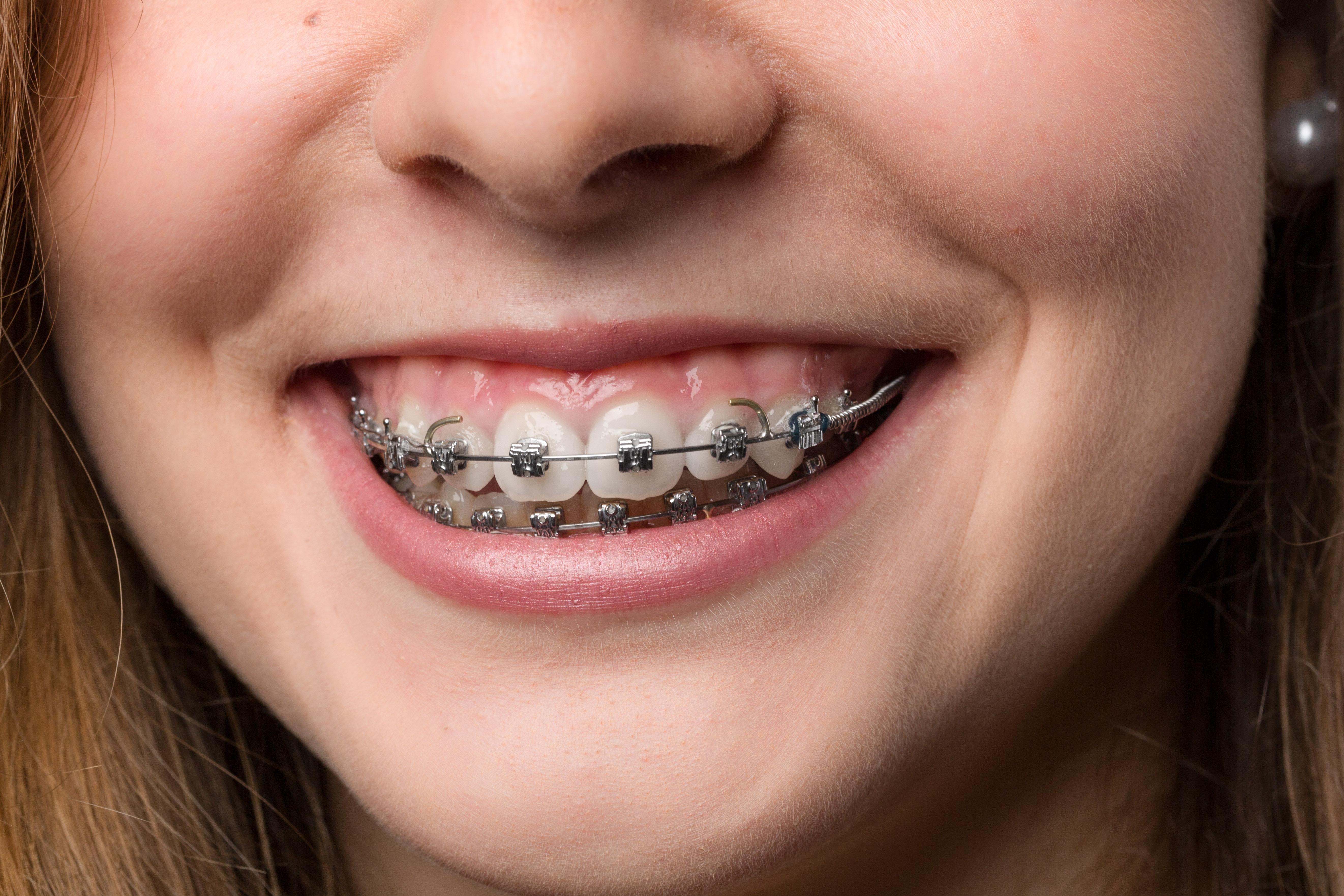 Pautas alimentarias en personas portadoras de ortodoncia