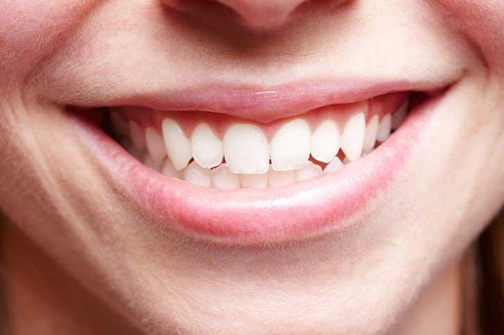 Gingivitis inducida por biofilm oral