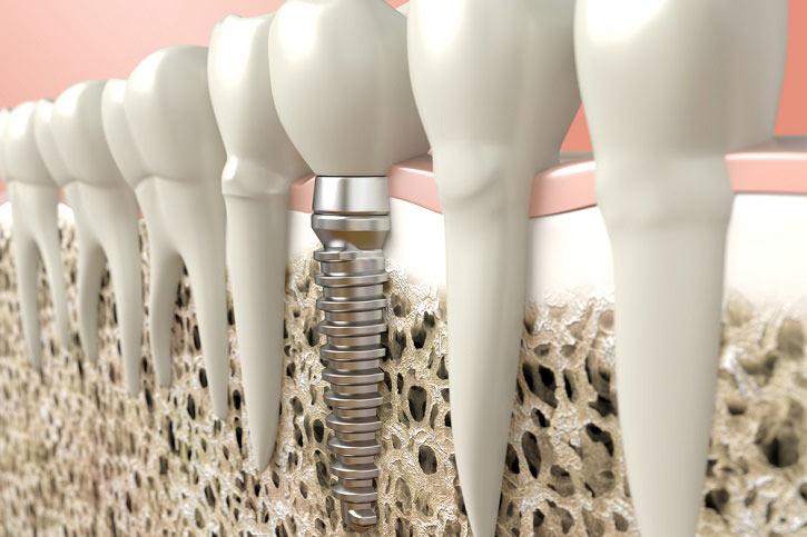 Mantenimiento de la higiene en pacientes con implantes