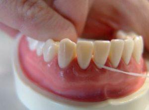 uso de la seda o cinta dental 3