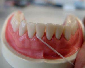 uso de la seda o cinta dental 4