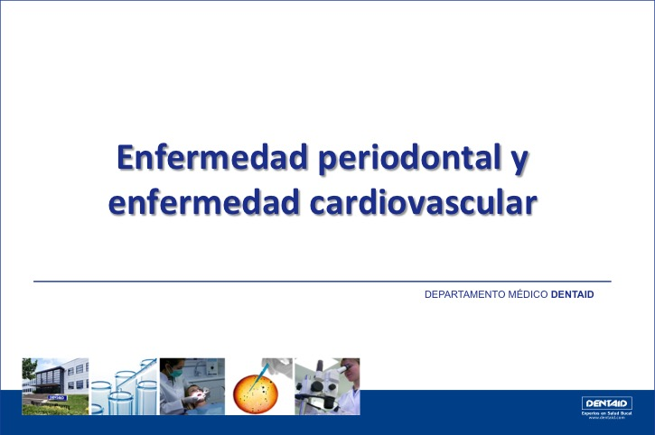 Enfermedad periodontal y enfermedad cardiovascular