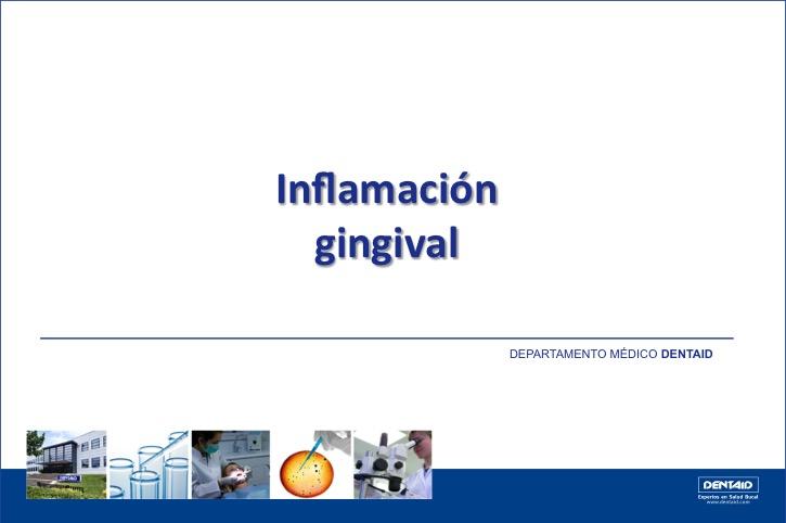 Inflamación gingival