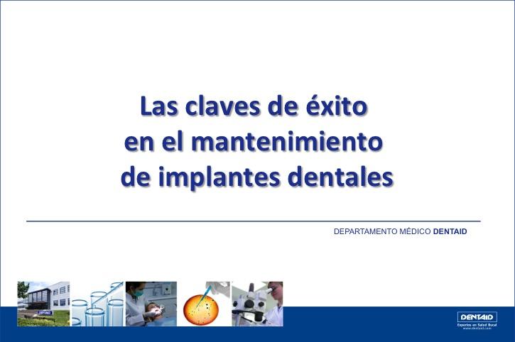 Las claves de éxito en el mantenimiento de implantes dentales