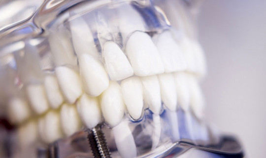Claves de éxito en el mantenimiento de implantes dentales