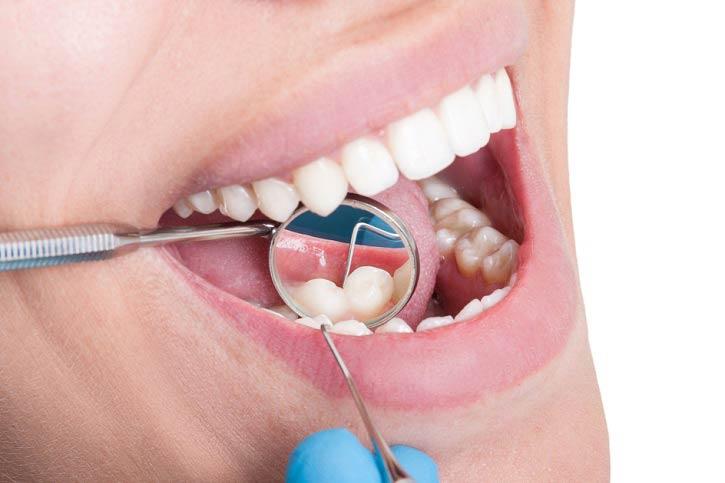 Erosión y caries dentales