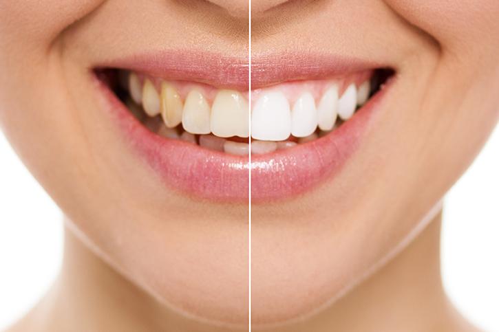 Tipos de blanqueamiento dental y mantenimiento