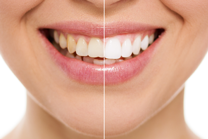 tipos de blanqueamiento de dientes