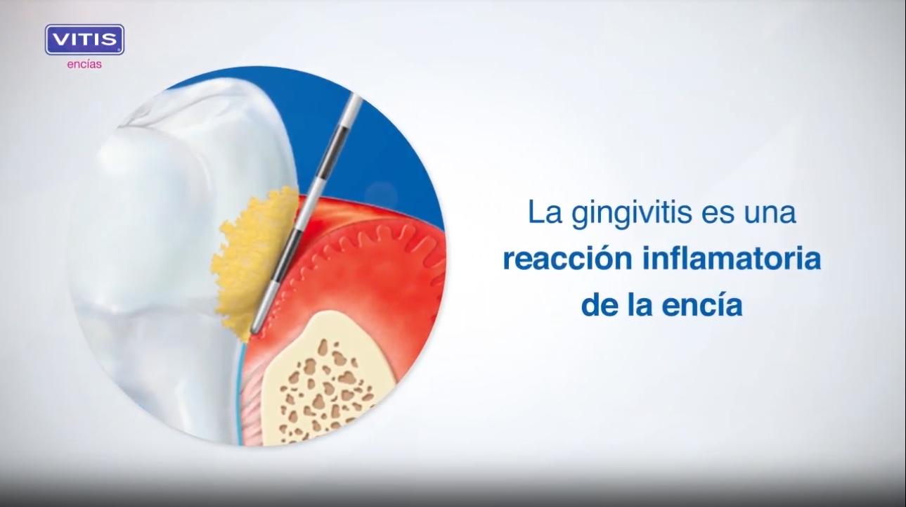 VITIS encías: gingivitis