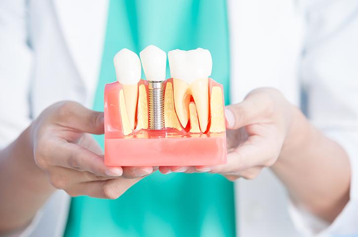 Factores de riesgo en los implantes