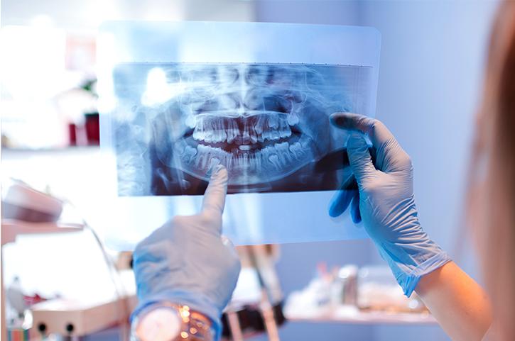 Posibles alteraciones de la forma del diente