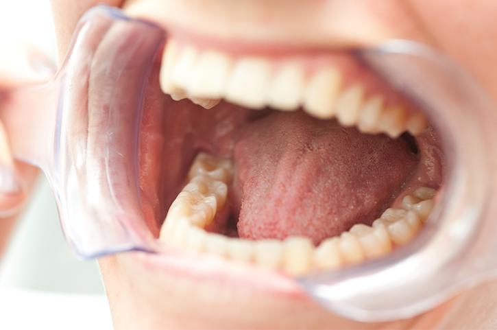 Por qué es importante limpiarse la lengua